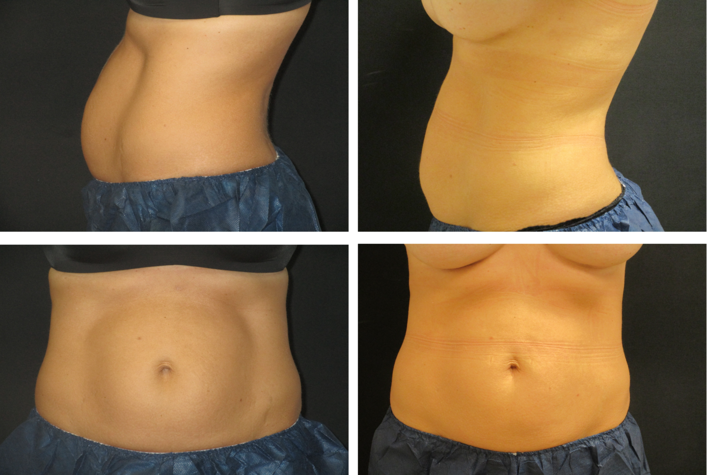CoolSculpting of Abdomen 93115