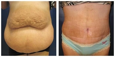 Robinson Abdominoplasty Case 1
