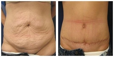 Robinson Abdominoplasty Case 2