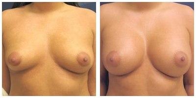 Robinson Asymmetric Breasts Case 1