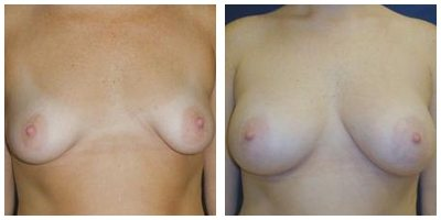 Robinson Asymmetric Breasts Case 2