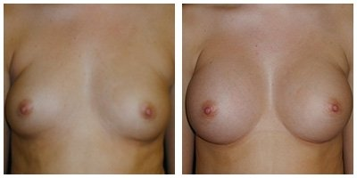 Robinson Breast Augmentation Case 1