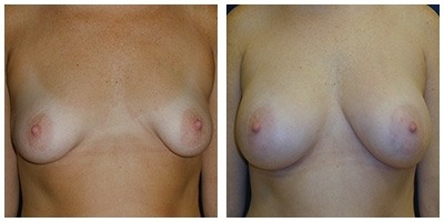 Robinson Breast Augmentation Case 3