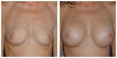 Robinson Breast Augmentation Case 5