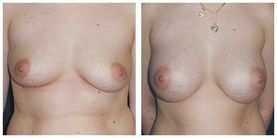 Robinson Breast Augmentation Case 6