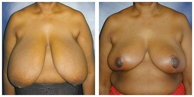Robinson Breast Reduction Case 1