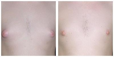 Robinson Gynecomastia Case 2