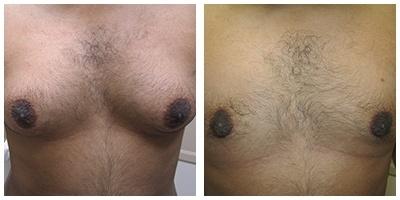 Robinson Gynecomastia Case 3