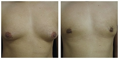 Robinson Gynecomastia Case 4