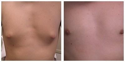 Robinson Gynecomastia Case 5