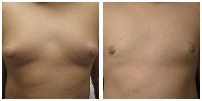 Robinson Gynecomastia Case 6