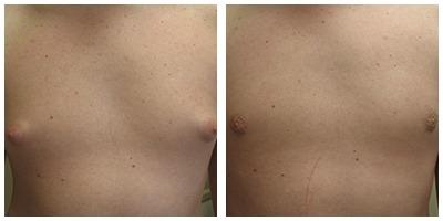 Robinson Gynecomastia Case 7