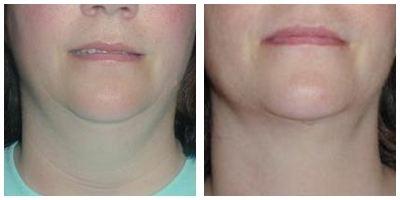Robinson Neck Liposuction Case 1