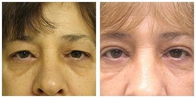 Robinson Upper Eyelid Case 1