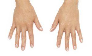 Hands (After)