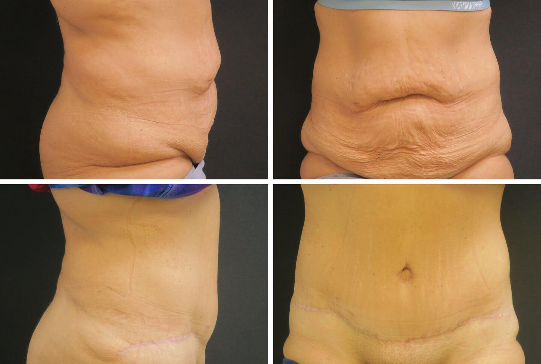Aug-case-07623-abdominoplasty-1440x968