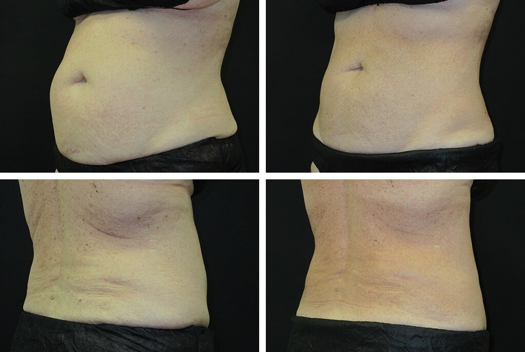 TPSG-aug19-Before_After_cs-abdomen