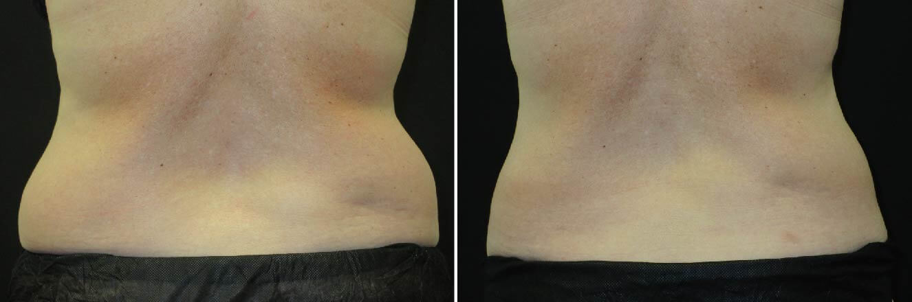 tpsg-aug19-coolsculpting-flank_case-47702