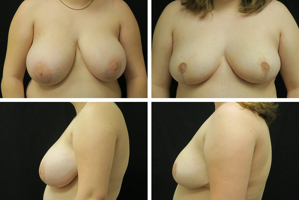 Before_After_jan20-breast-reduct-40913