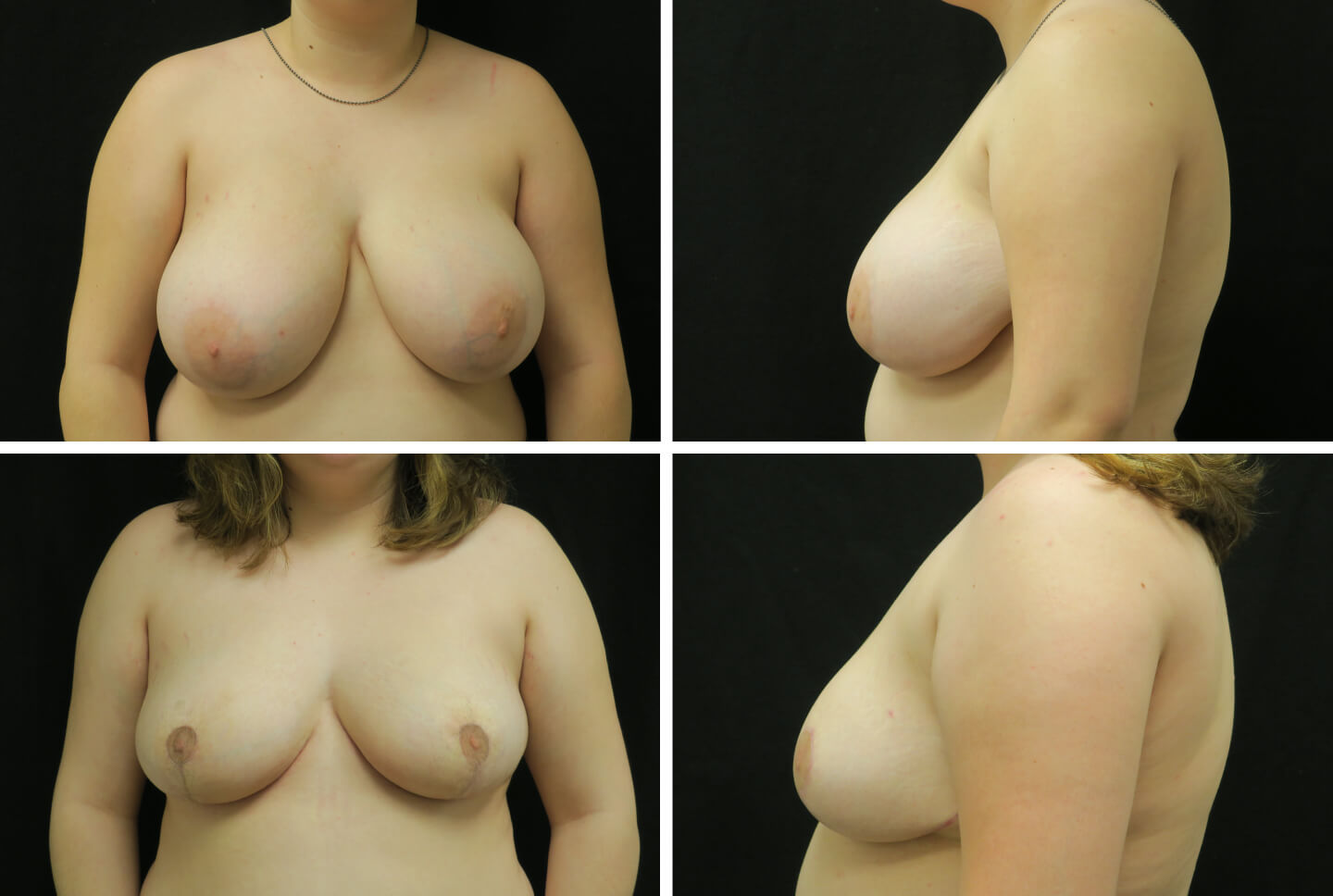 jan-case-40913-breast-reduct-1440x968
