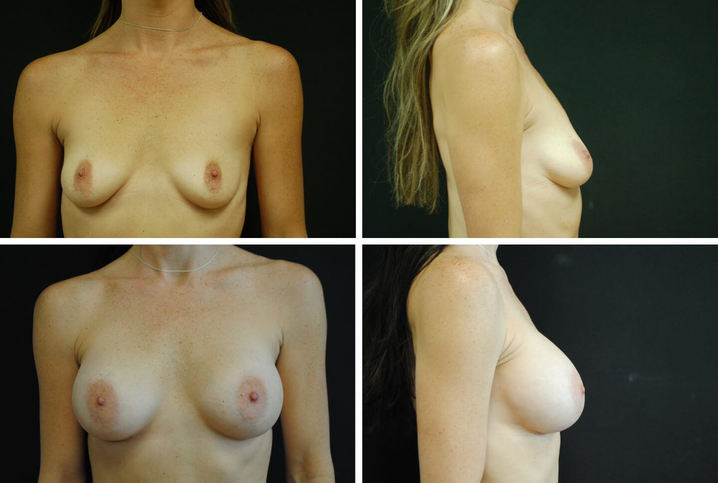 jan-case-48743-breast-aug-1440x968