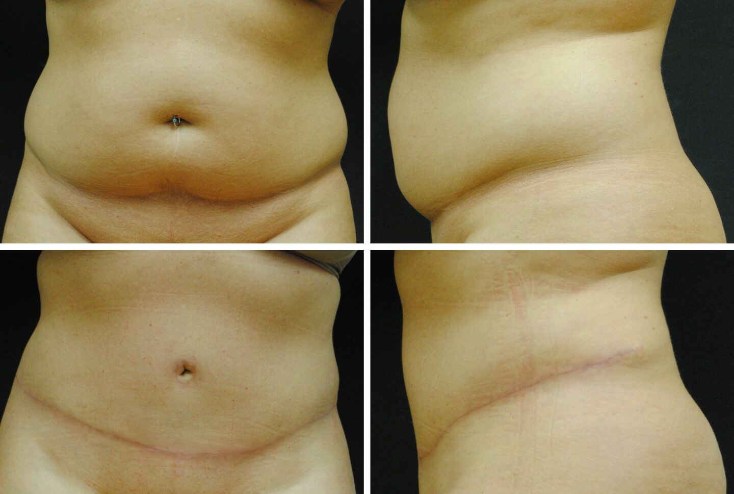 jan-case-81413-tummy-tuck-1440x968