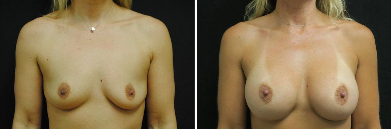 Before-After-breast-aug-46653