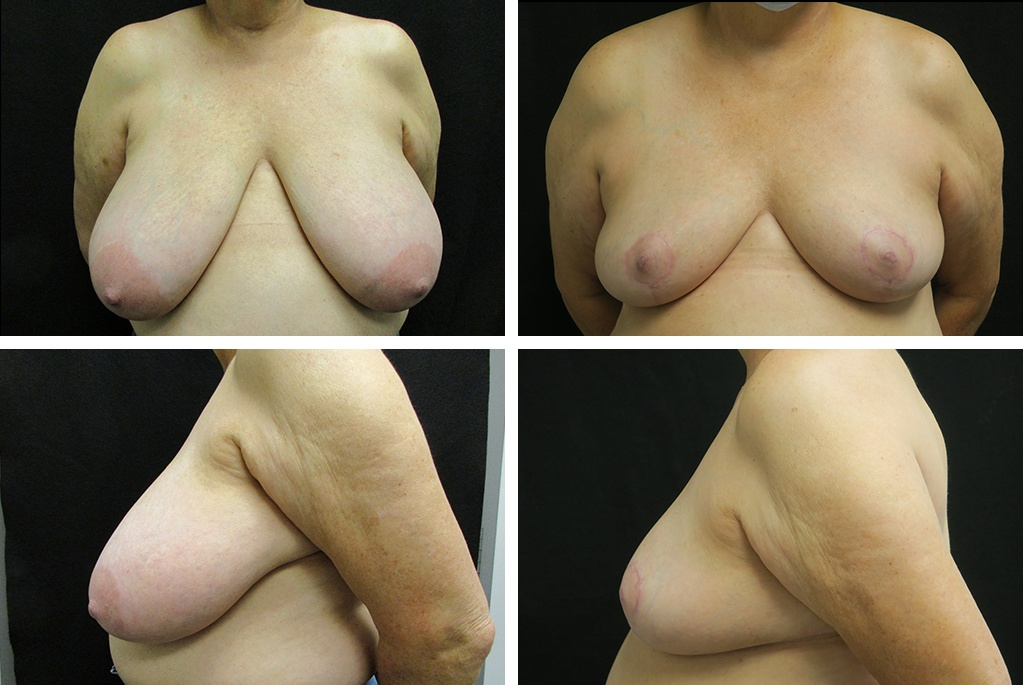 Before-After-breast-reduction-74353