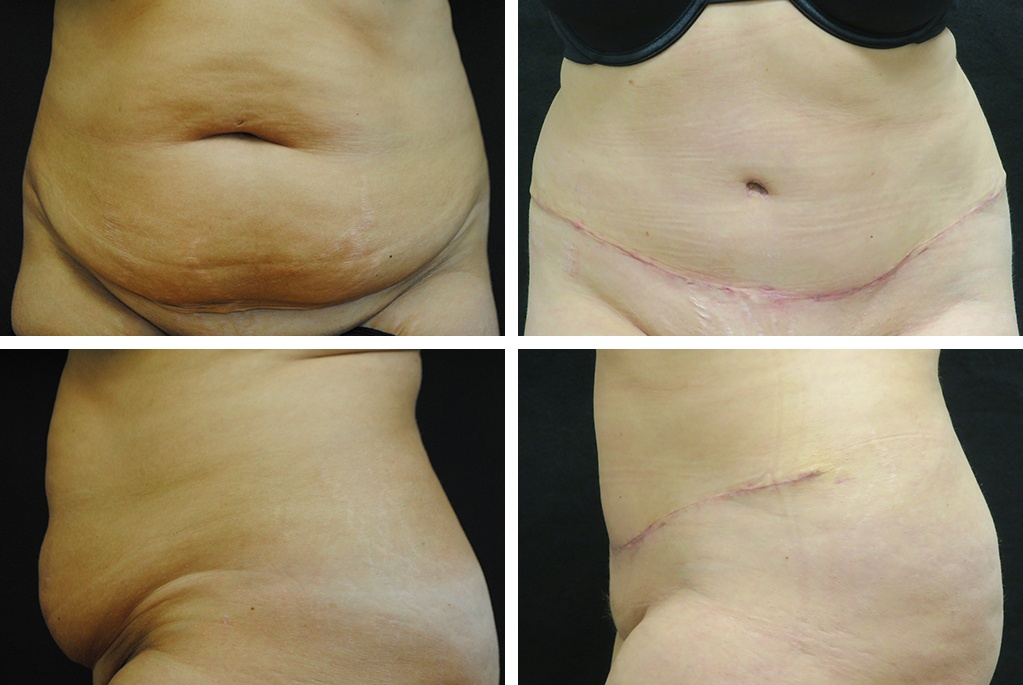 Before_After_oct20-abdominoplasty-50143