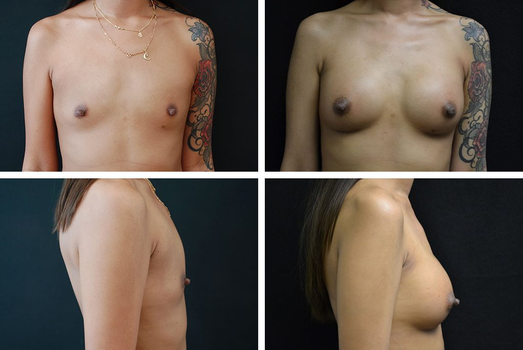 Before_After_oct20-breast-aug-39943