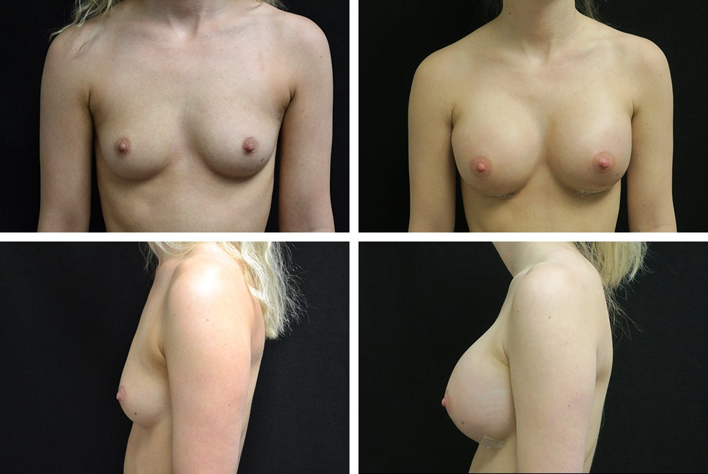 Before_After_nov20-breast-aug-41553