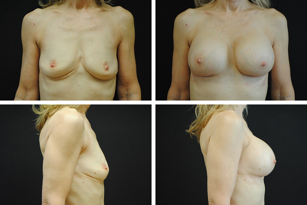 Before_After_nov20-breast-aug-94853