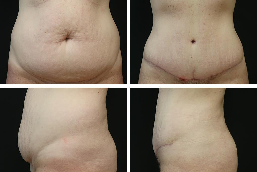 Before_After_dec20-tummy-tuck-14863