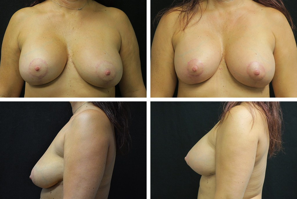 Before_After_nov20-breast-implant-40453