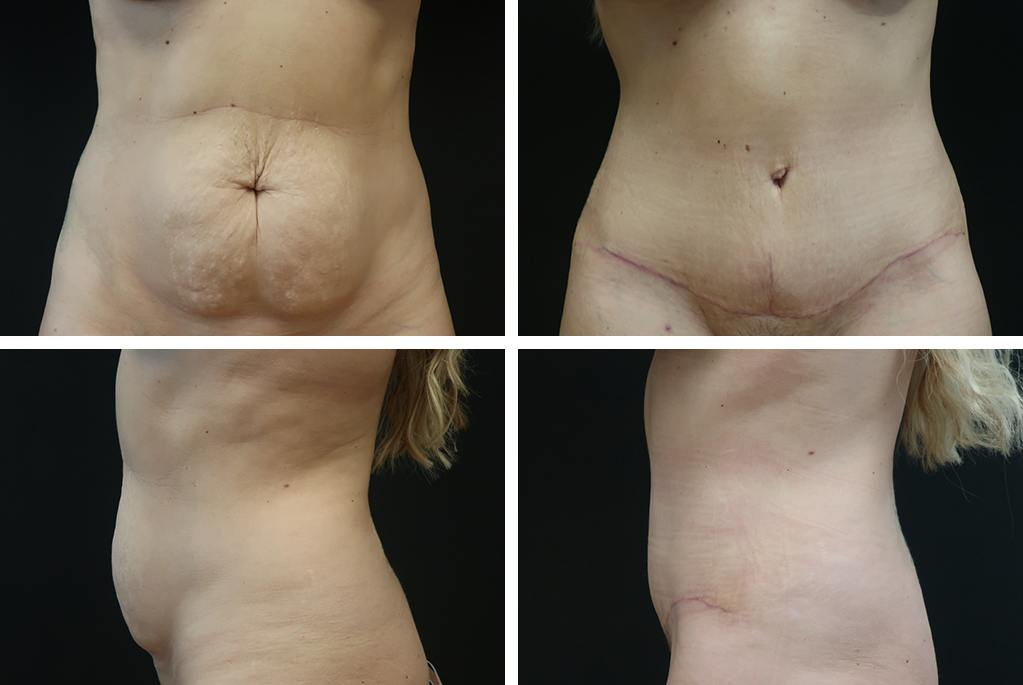 Before_After_feb21-abdominoplasty-25061