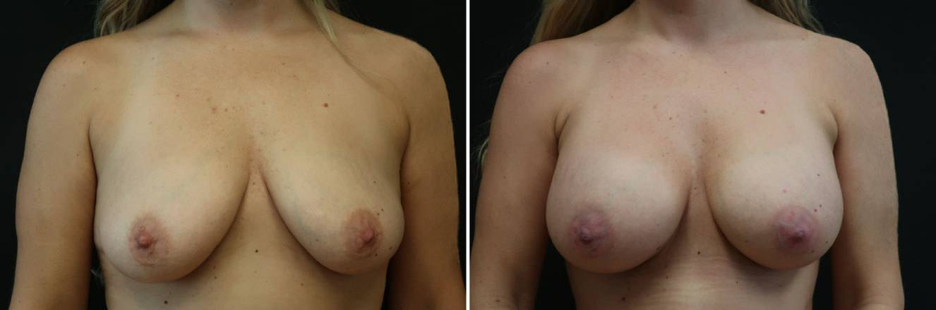 Before_After_feb21-breast-aug-25061