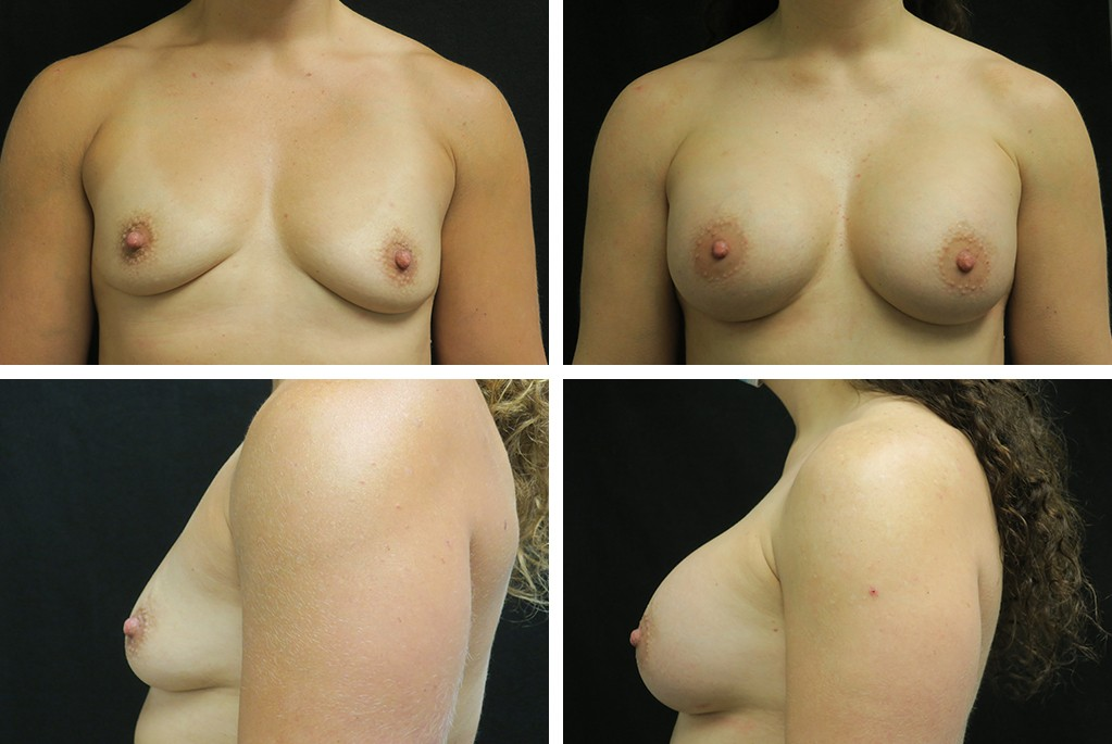 Before_After_feb21-breastaug-unknown