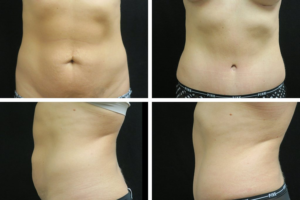 Before_After_feb21-tummytuck-breastaug-59663