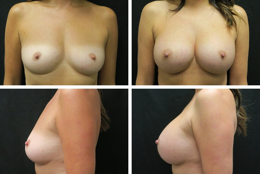 Before_After_mar21-breast-aug-76273