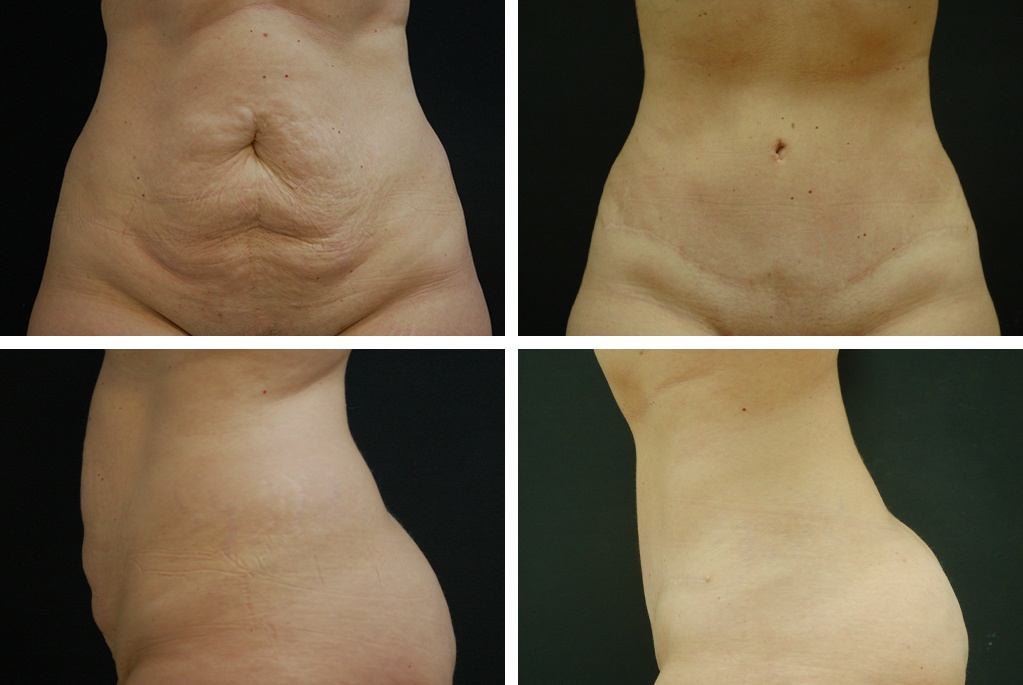 Before_After_mar21-tummy-tuck-51703