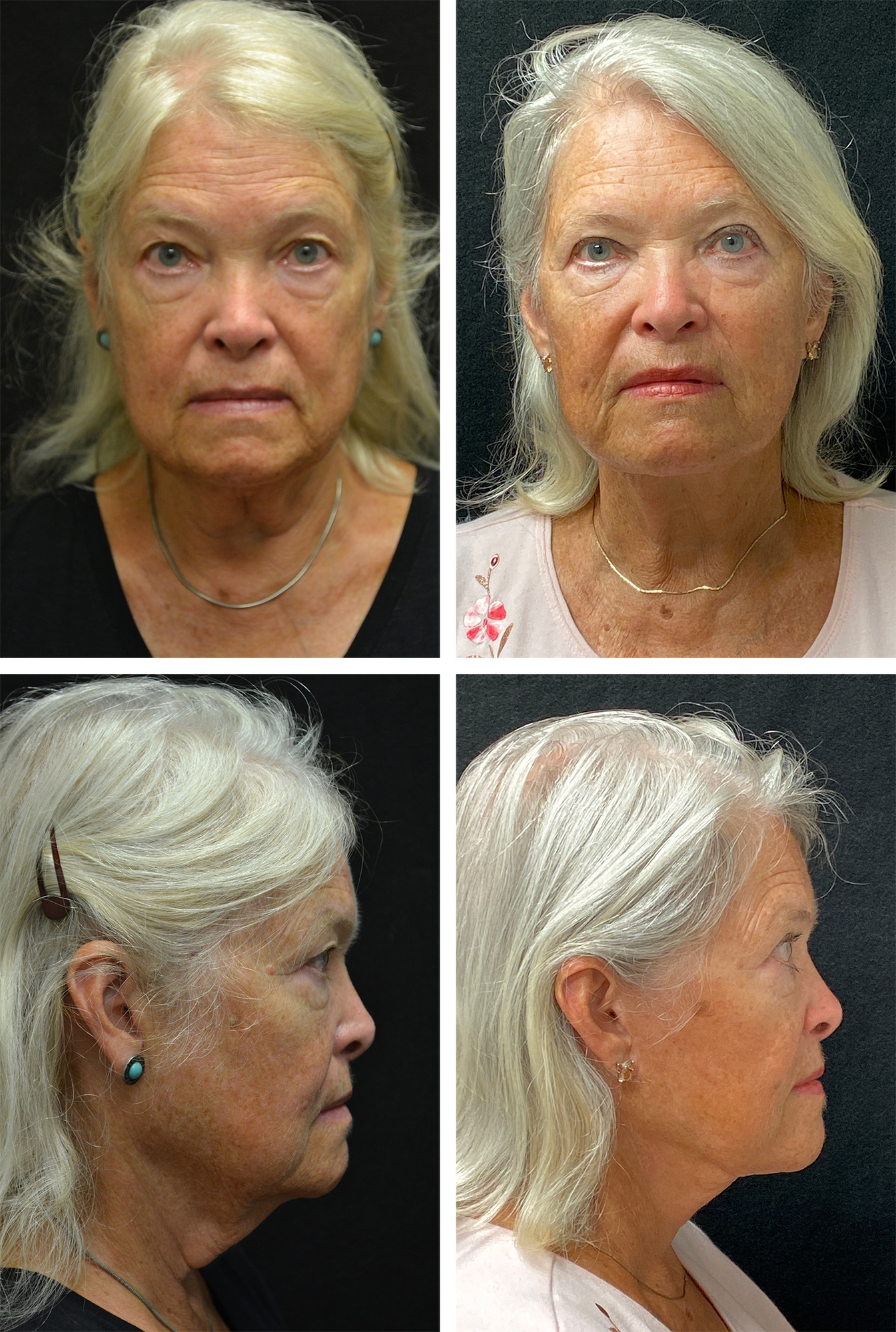 Before_After-facelift-51663