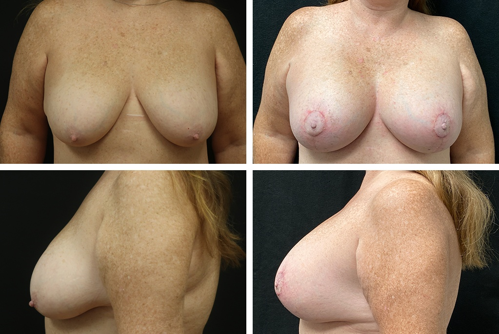 Before_After_july21-breastaug-05383