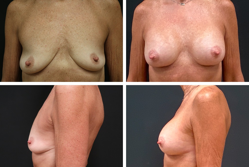 Before_After_july21-breastaug-6123