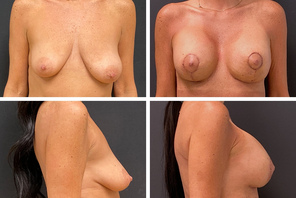 17709-tpsg-Before_After_aug21-breast_aug-51952
