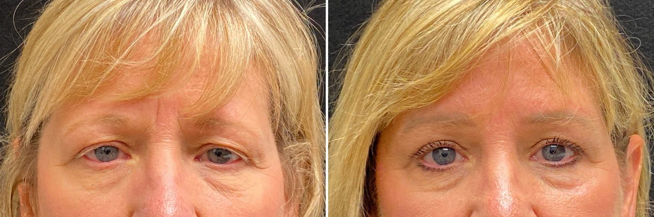 18308-tpsg_oct21-Before_After-blepharo_brow-06093