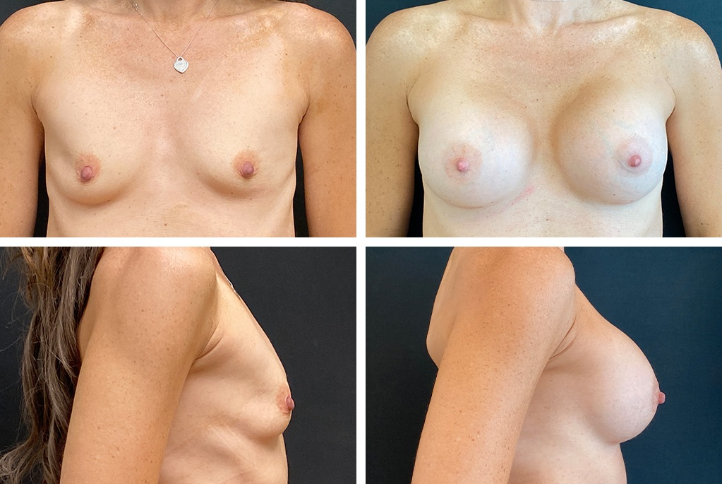 18308-tpsg_oct21-Before_After-breast-aug-22393