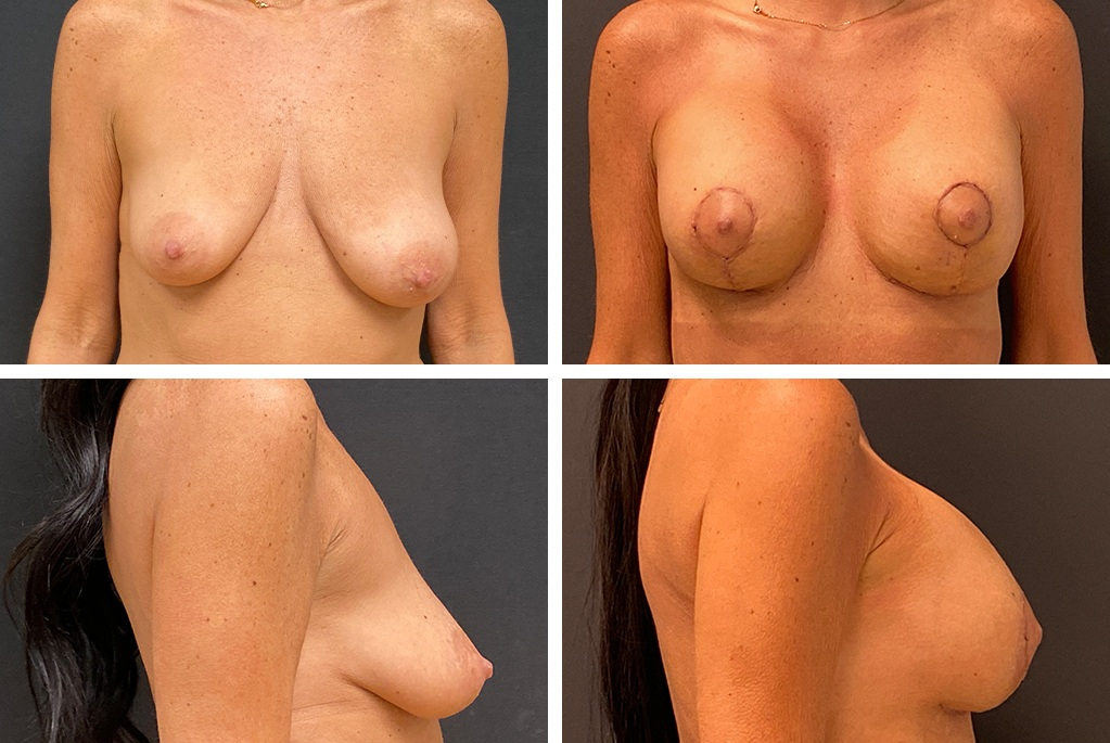 18333-tpsg_oct21-Before_After-breast_aug-51952