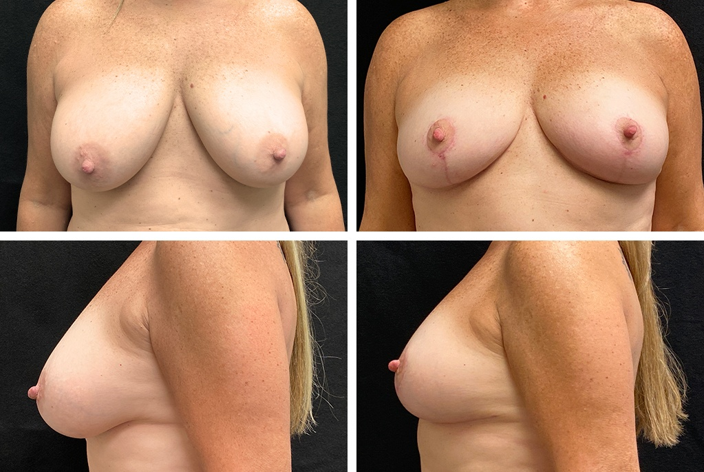 18333-tpsg_oct21-Before_After-mastopexy-57983